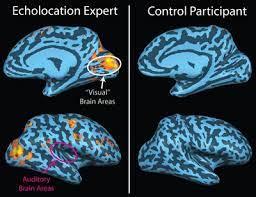 Human echolocation - Wikipedia