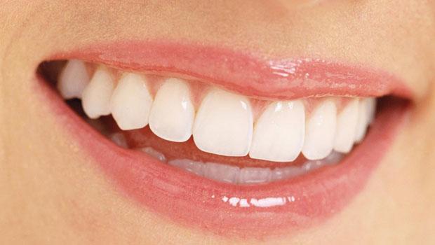 Có cần phải lấy tủy khi bọc răng sứ ? - Nha khoa Bally