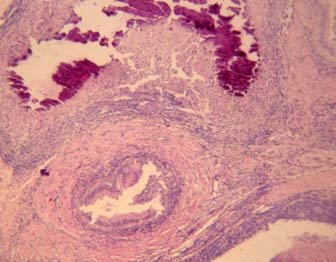 Photomicrograph of epididymal tubules filled with cheese-like exudate, with central calcification (H&E:10x).(Photo courtesy Prof. William Vale).